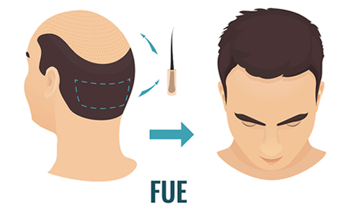 FUE Does Hair Grow Back In Donor Area?