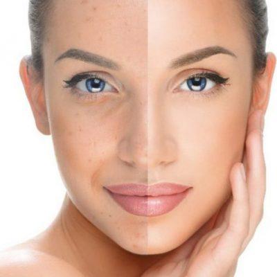 Face-Pigmentation